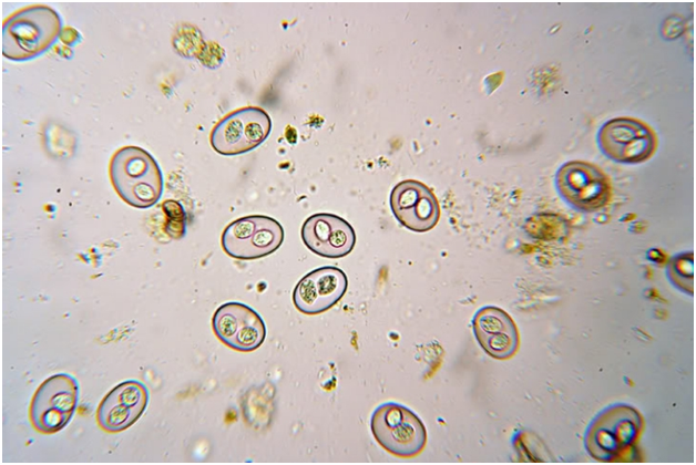 koktsidioz-pod-mikroskopom